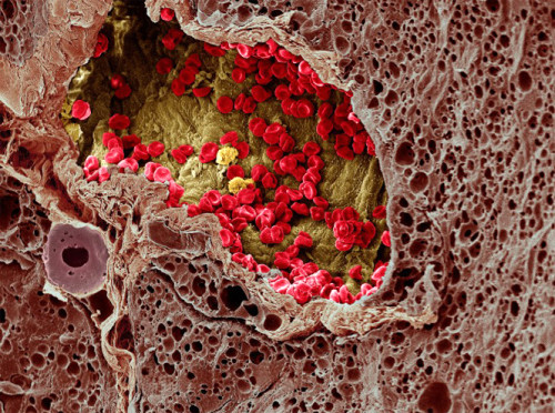 B0003655 SEM of blood vessel in a melanoma - coloured