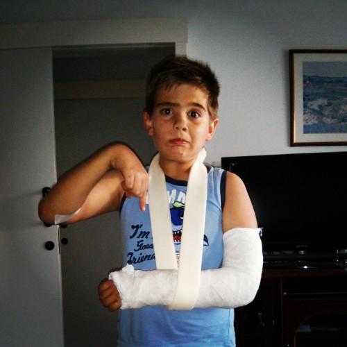 Maxim hand cast